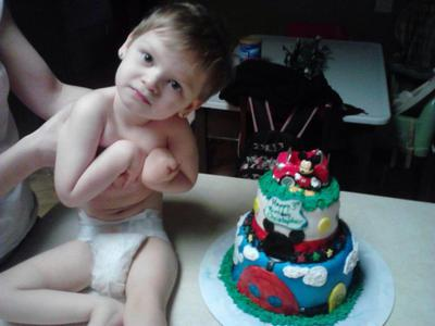 This is Christopher. He Has Lissencephaly